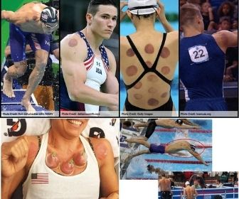 Cupping Set people